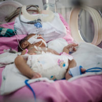 Infant with brain injury