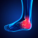 Ankle accident